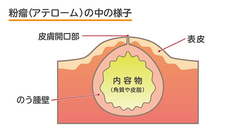 アテローム 粉瘤(アテローム)の化膿や悪性化の心配